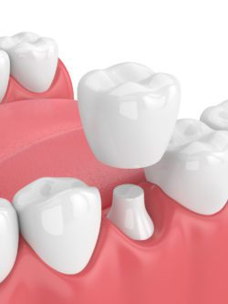 Affordable dental crowns in Westborough Massachusetts