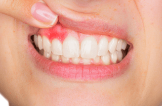 treating bleeding gums and gingivitis in Westborough MA