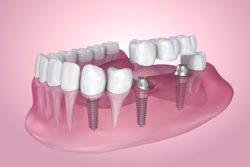 dentist in westborough, massachusetts