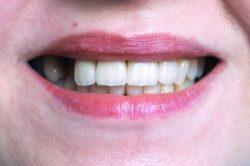 restorative dentist in westborough, massachusetts